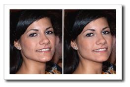 Eliminando los Brillos de la Cara con Photoshop